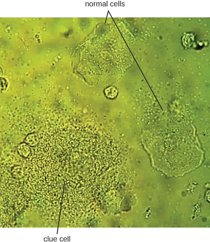 In this vaginal smear, the cell at the lower left is a clue cell with a unique appearance caused by the presence of bacteria on the cell. The cell on the right is a normal cell.