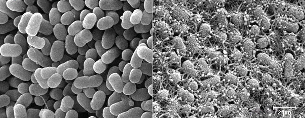 E. coli O157:H7 causes serious foodborne illness. Curli fibers (adhesive surface fibers that are part of the extracellular matrix) help these bacteria adhere to surfaces and form biofilms. Pictured are two groups of cells, curli non-producing cells (left) and curli producing cells (right).