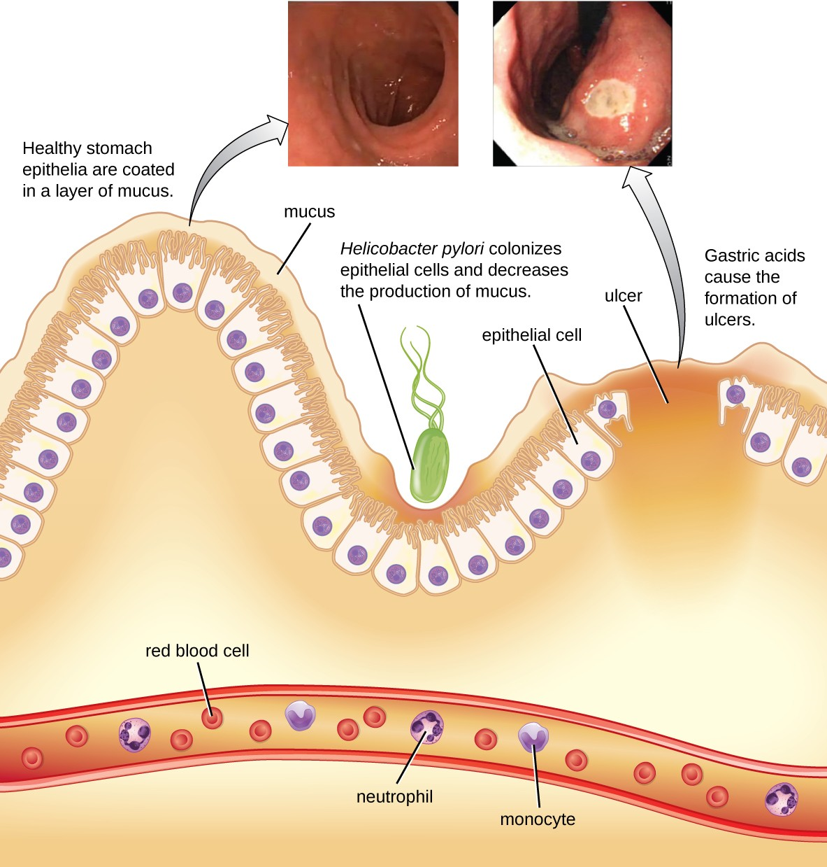 Helicobacter infection decreases mucus production and causes peptic ulcers.