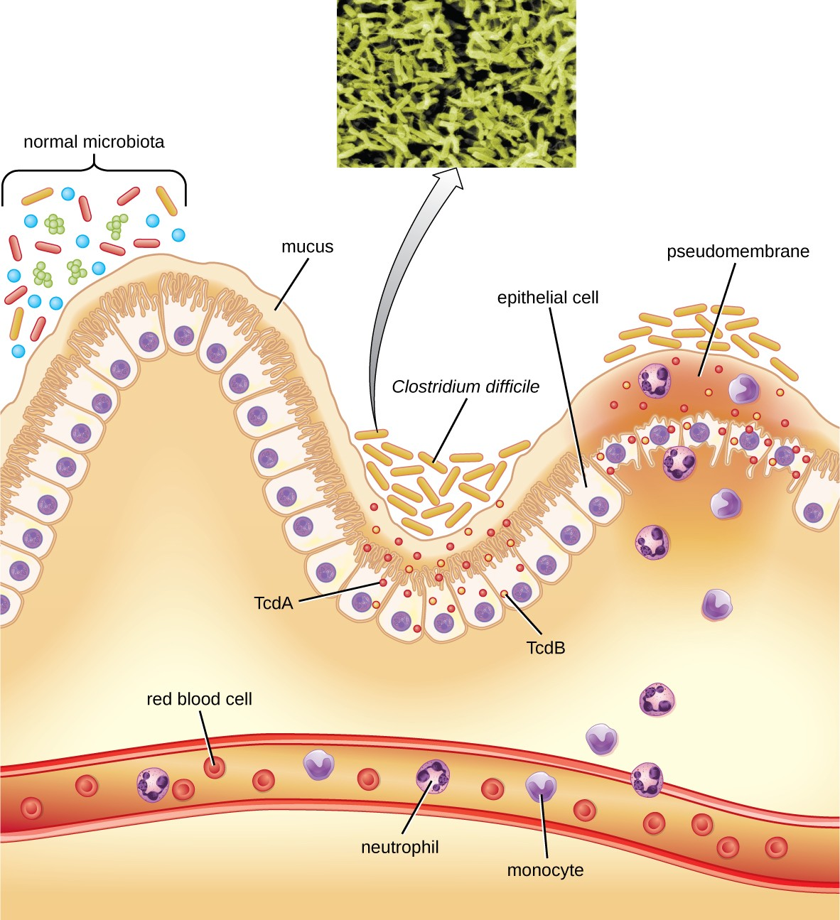 Clostridium difficile is able to colonize the mucous membrane of the colon when the normal microbiota is disrupted. The toxins TcdA and TcdB trigger an immune response, with neutrophils and monocytes migrating from the bloodstream to the site of infection. Over time, inflammation and dead cells contribute to the development of a pseudomembrane.