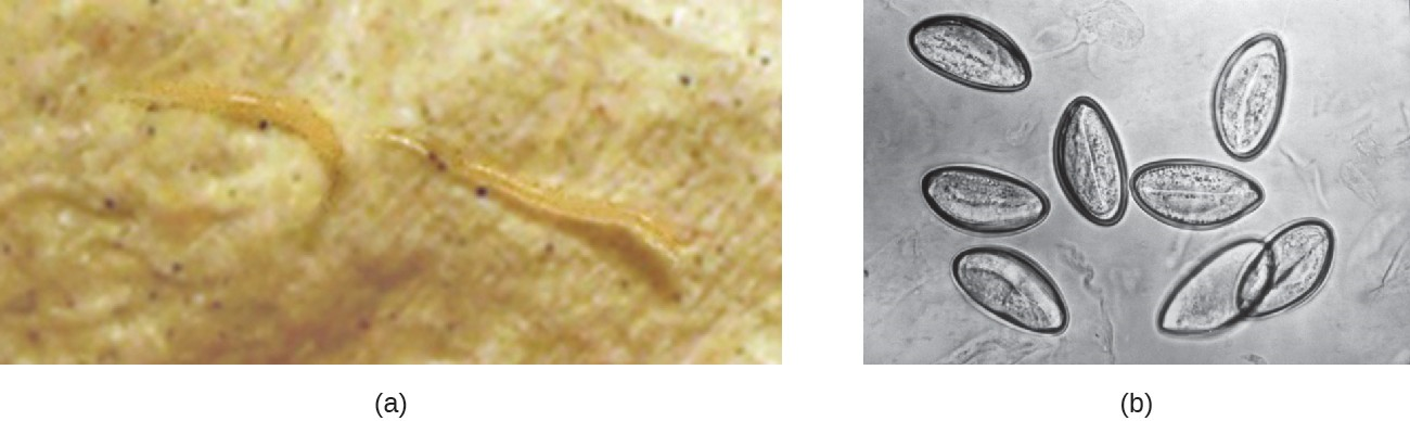 (a) E. vermicularis are tiny nematodes commonly called pinworms. (b) This micrograph shows pinworm eggs.