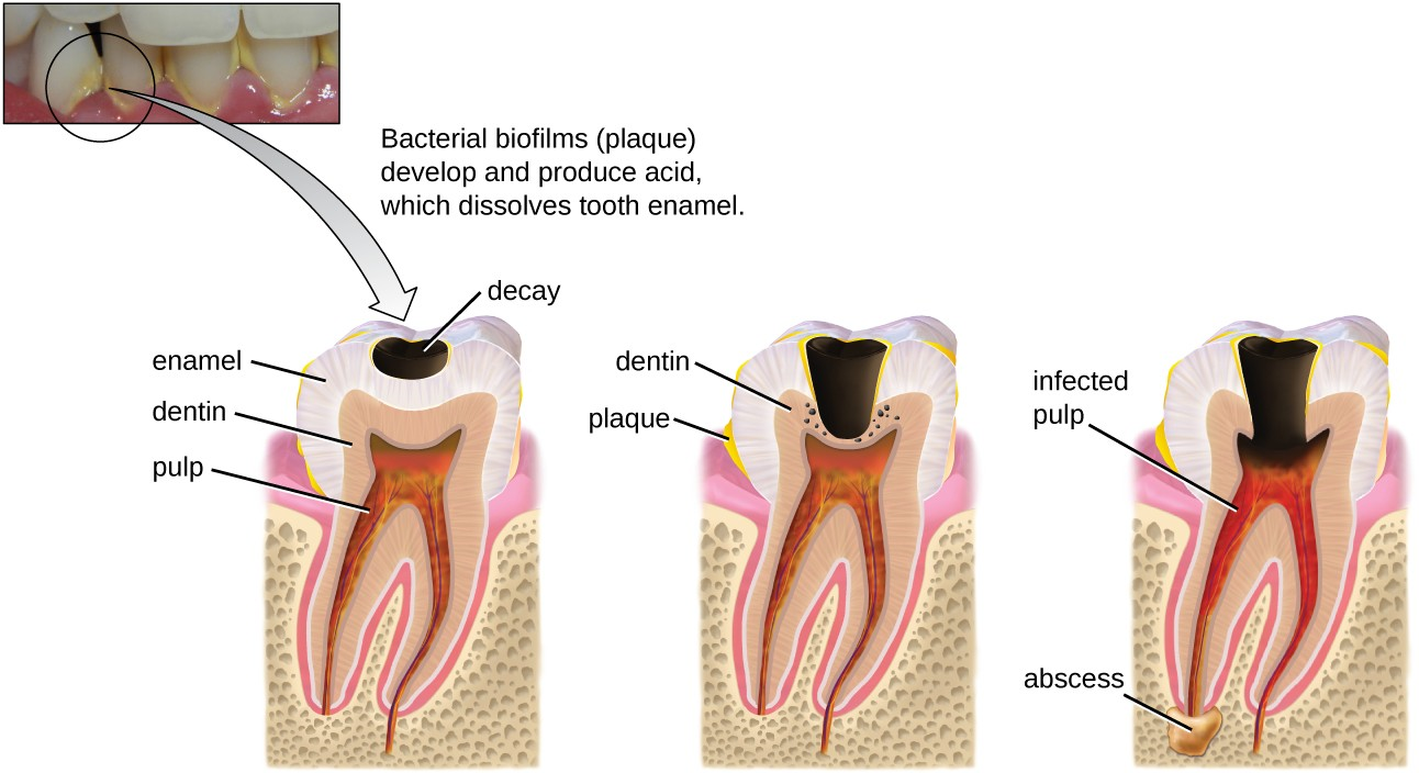 Tooth decay occurs in stages. When bacterial biofilms (plaque) develop on teeth, the acids produced gradually dissolve the enamel, followed by the dentin. Eventually, if left untreated, the lesion may reach the pulp and cause an abscess.