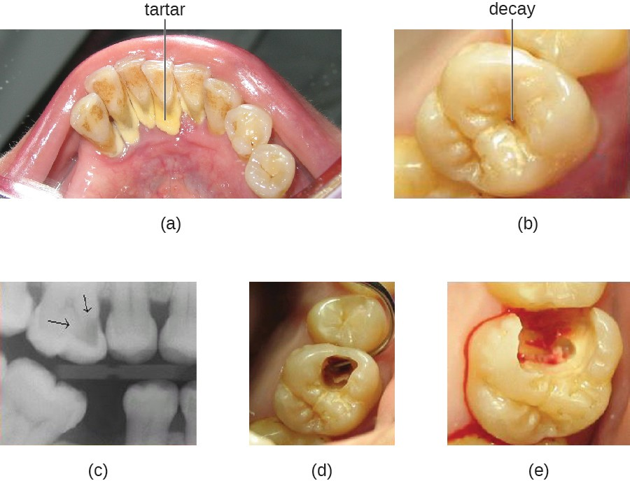 (a) Tartar (dental calculus) is visible at the bases of these teeth. The darker deposits higher on the crowns are staining. (b) This tooth shows only a small amount of visible decay. (c) An X-ray of the same tooth shows that there is a dark area representing more decay inside the tooth. (d) Removal of a portion of the crown reveals the area of damage. (e) All of the cavity must be removed before filling.