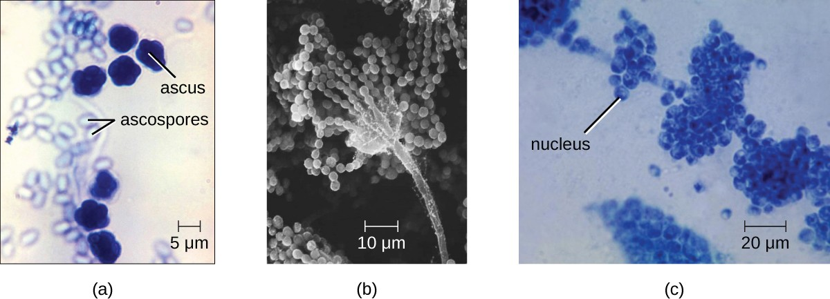 (a) This brightfield micrograph shows ascospores being released from asci in the fungus Talaromyces flavus var. flavus. (b) This electron micrograph shows the conidia (spores) borne on the conidiophore of Aspergillus, a type of toxic fungus found mostly in soil and plants. (c) This brightfield micrograph shows the yeast Candida albicans, the causative agent of candidiasis and thrush.